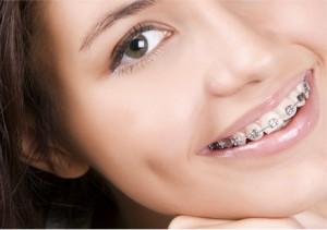 ortodonti-doktoru-izmir