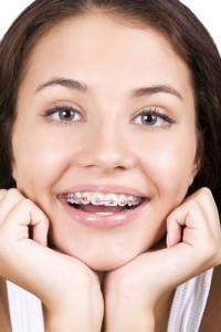 ortodonti-nedir
